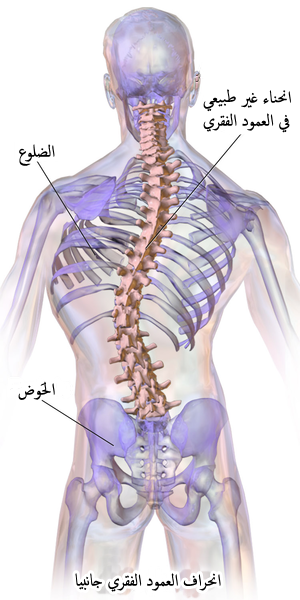 Blausen 0785 Scoliosis 01-ar.png