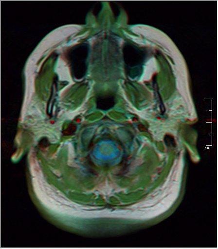 Brain MRI 0145 19.jpg