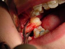 Dental extraction operation (usually by a dentist or oral surgeon) to remove a tooth