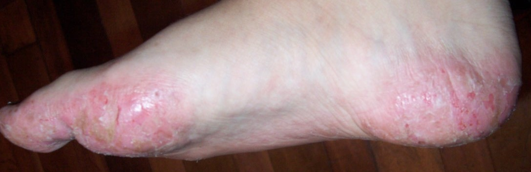 Image Result For What Is An Allergic Reaction