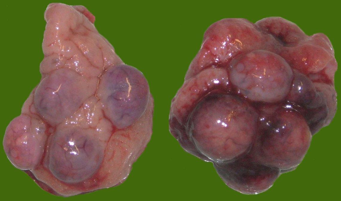Ovariektomie – Wikipedia