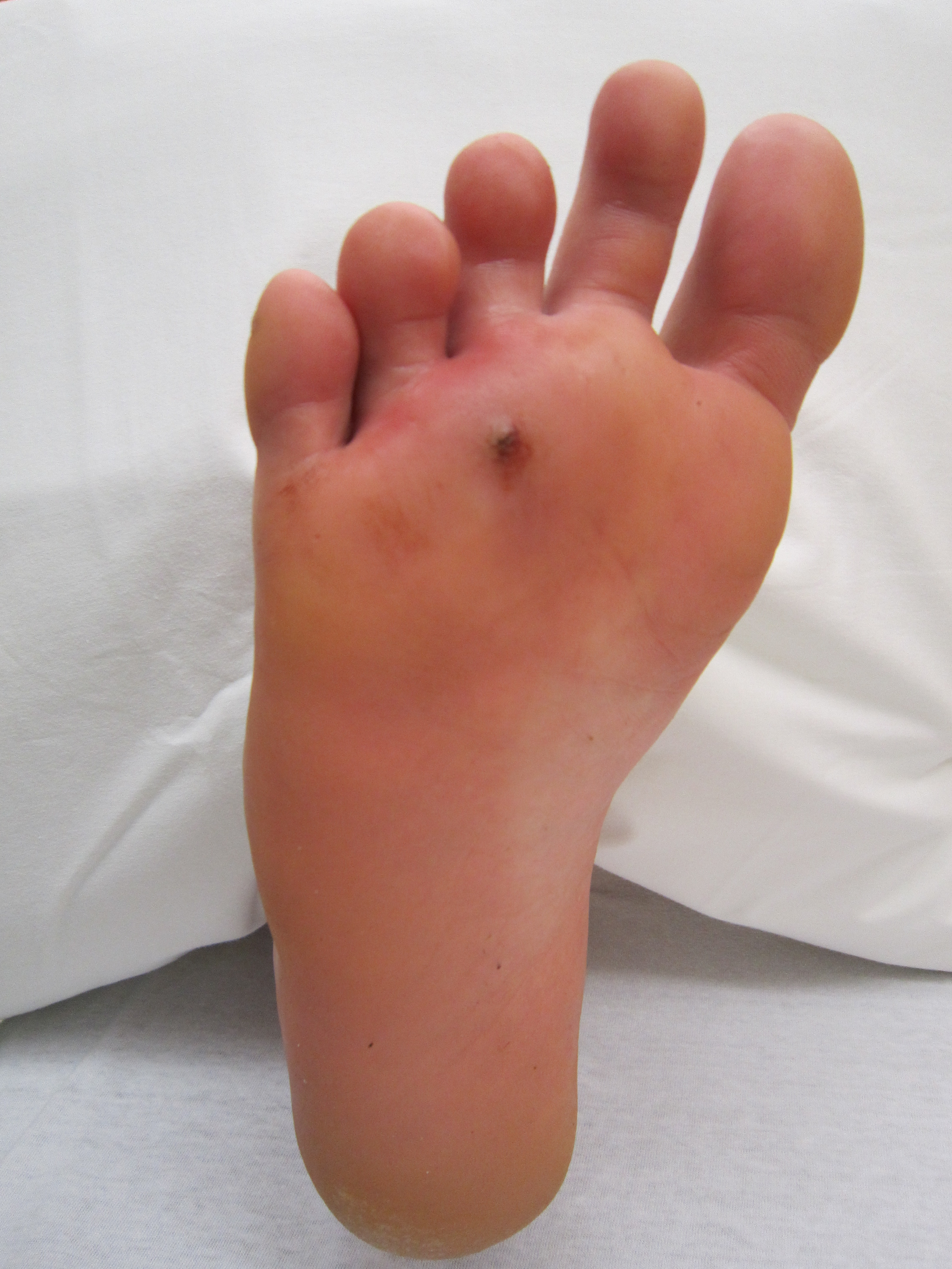 An infected puncture wound to the bottom of the forefoot.