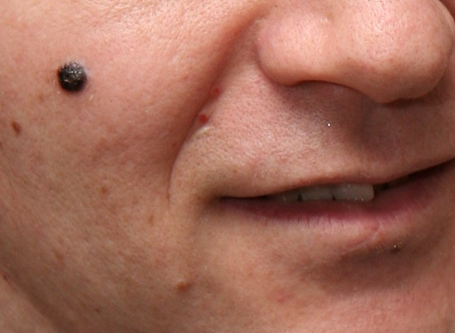 Pictures of facial moles made you