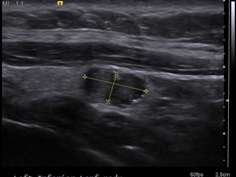 File Papillary Thyroid Carcinoma Ultrasound 37f 20160010 Jpg