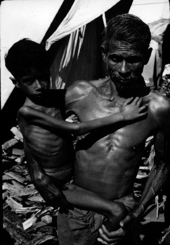 A child suffering extreme starvation in India, 1972. - Wikipedia