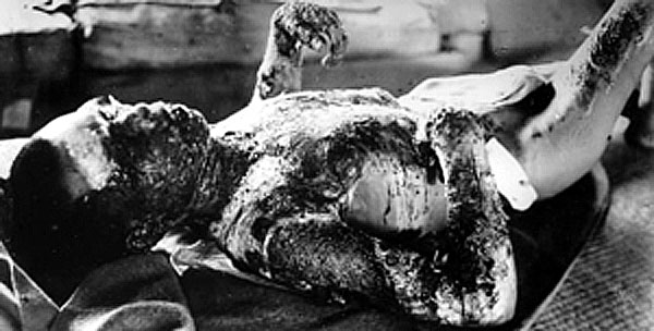 Victim_of_Atomic_Bomb_001.jpg