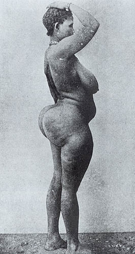 Woman with steatopygia.jpg