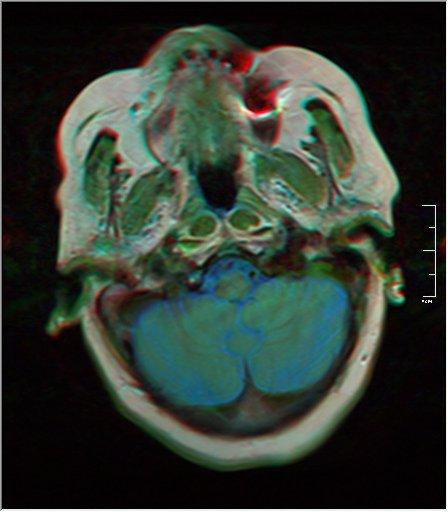 Brain MRI 0052 17.jpg