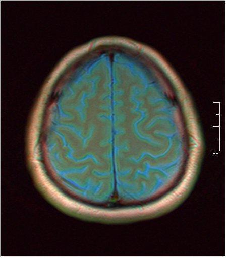 Brain MRI 0077 03.jpg