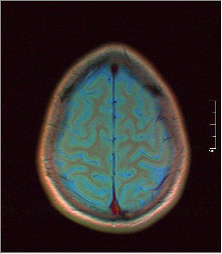 Brain MRI 0189 02.jpg
