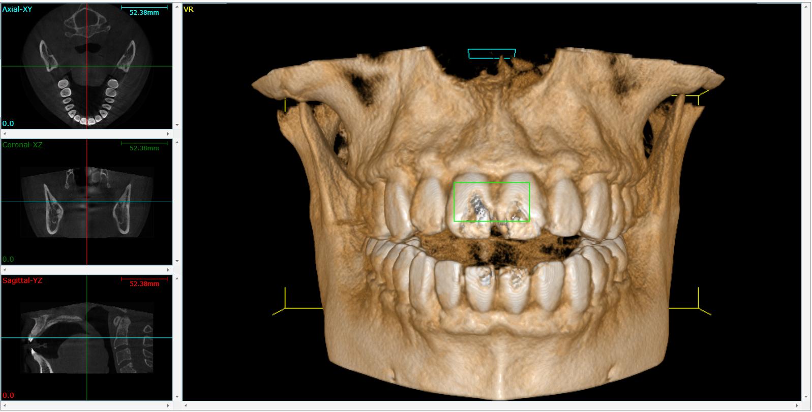 Tomografia Computerizzata Cone Beam Wikipedia