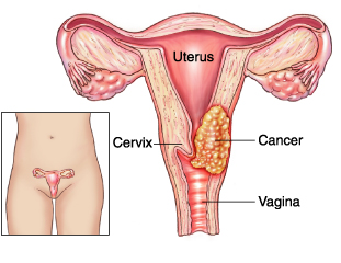 Image result for cancer cervical""