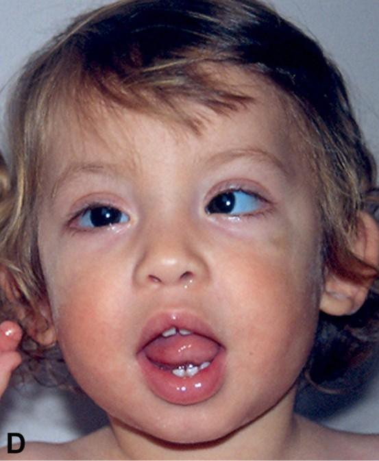 Orphanet: Gorlin syndrome