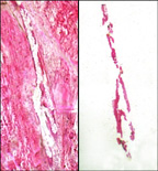 Laser capture micro-dissection transfer of pure breast duct epithelial cells. Left panel shows tissue section with selected cells removed. Right panel shows isolated epithelial cells on transfer film.