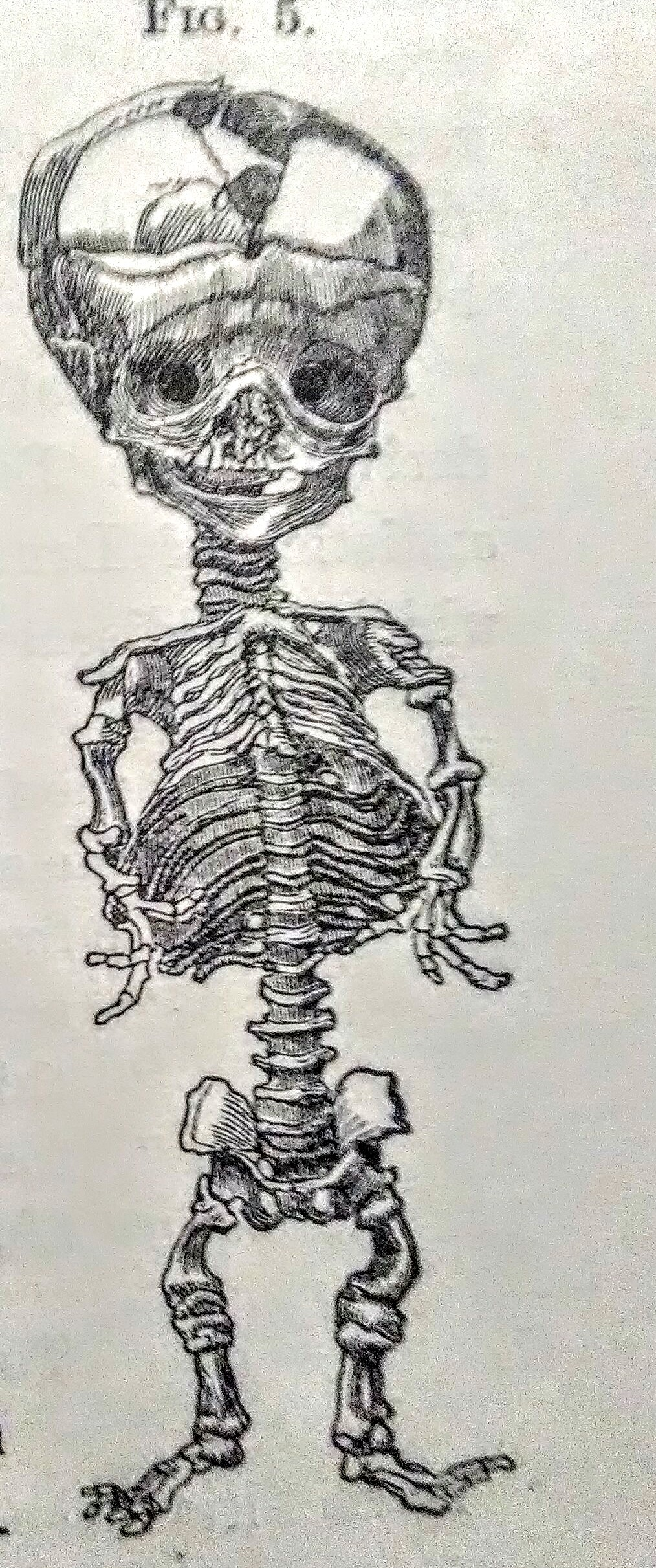 Skull bossing - Wikipedia