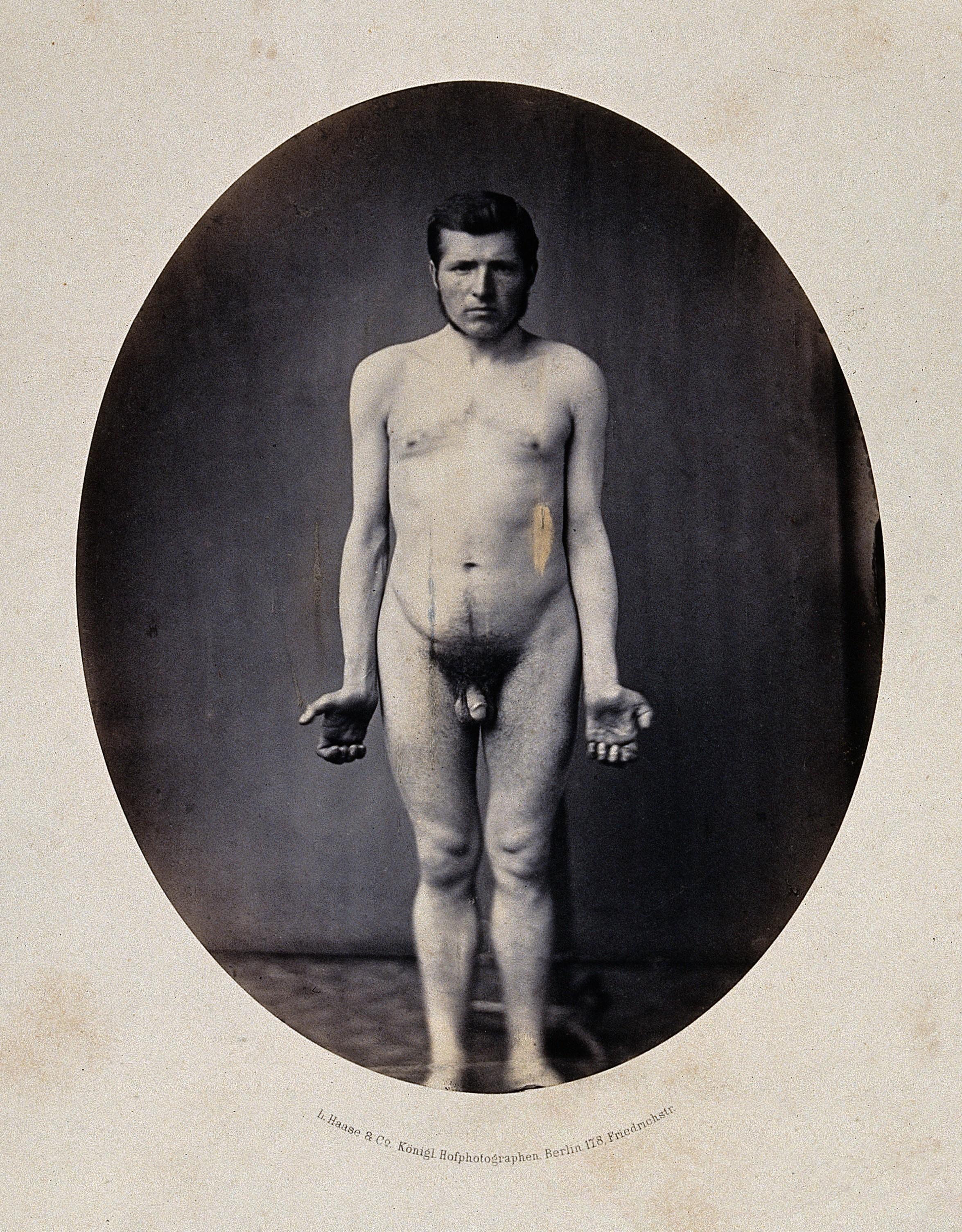 Man Naked Penis 83