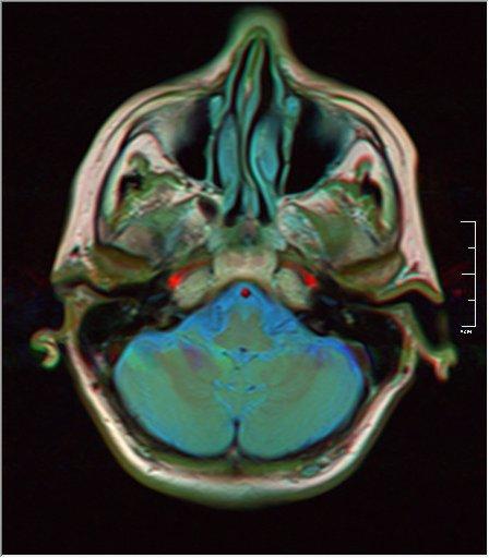 Brain MRI 0076 16.jpg