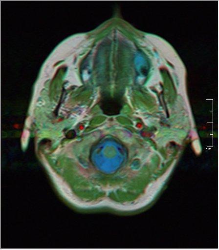 Brain MRI 0076 19.jpg