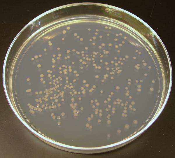 Escherichia coli O104:H4 — Википедия