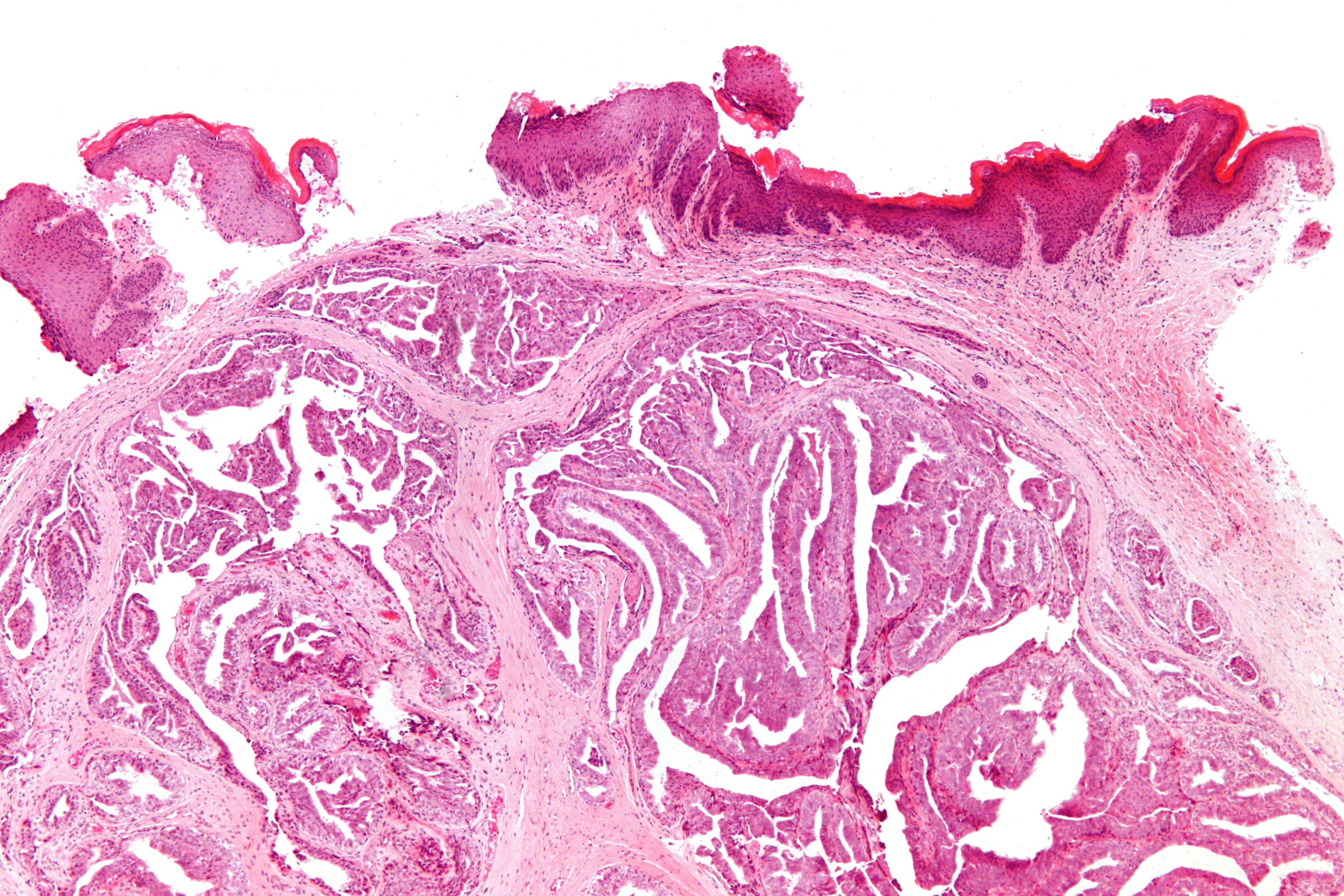 Hidradenoma Papilliferum Gross