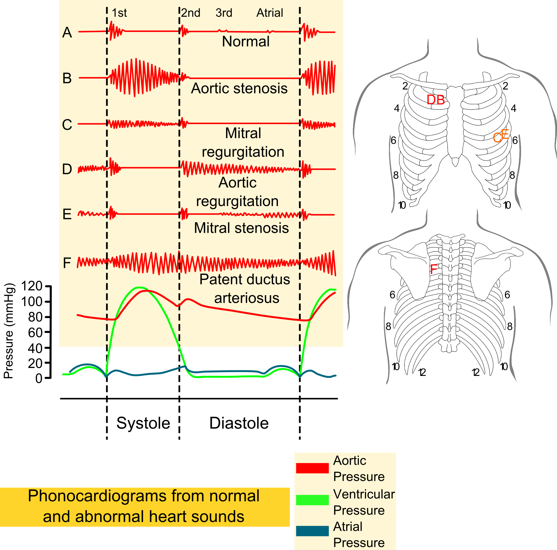 File Phonocardiograms From Normal And Abnormal Heart