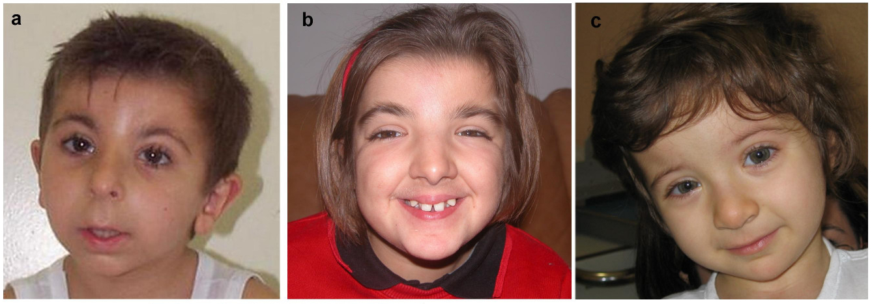 nablus mask like facial syndrome jpg 422x640