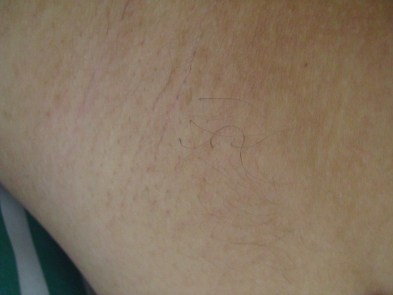 Teen Armpit Hair 89