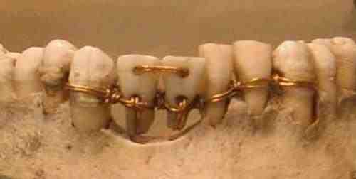 File:Ancient Egypt Dentistry jpg - Wikimedia Commons