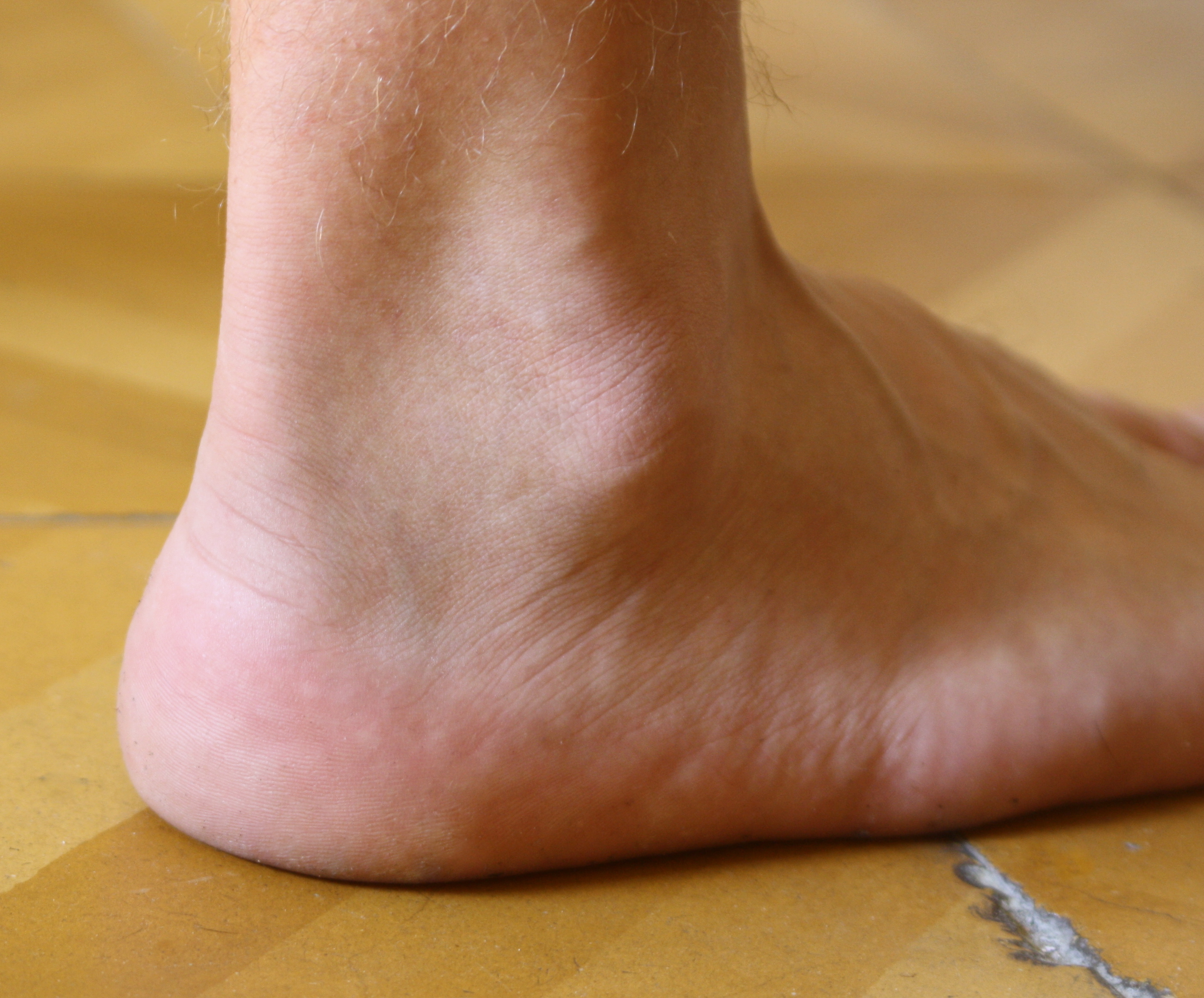 https://upload.wikimedia.org/wikipedia/commons/7/74/Ankle.jpg