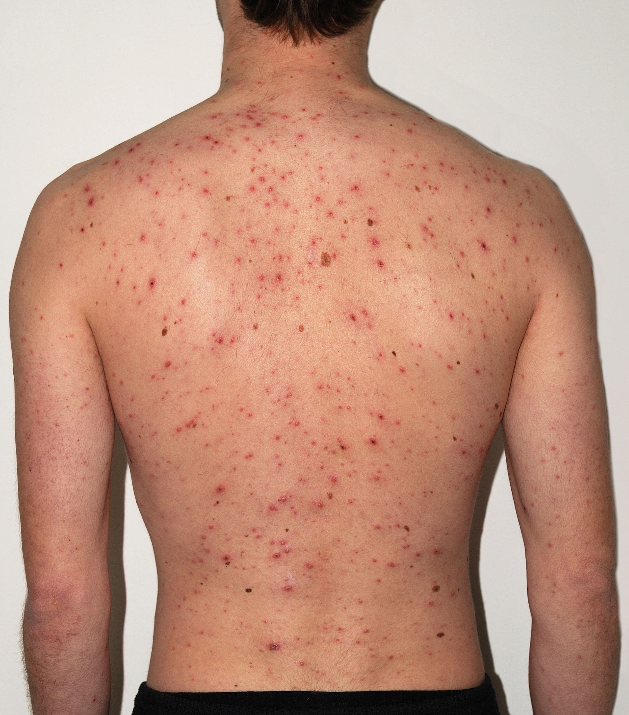 Description Chickenpox Adult back.jpg