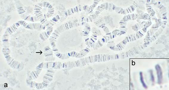 Drosophila polytene chromosomes, courtesy of J. Albert Vallunen (CC-BY-SA 2.5)