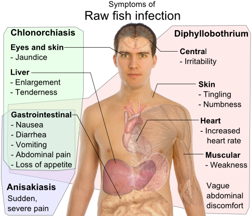 Differential symptoms of parasite infection by raw fish: Clonorchis sinensis (a trematode/fluke), Anisakis (a nematode/roundworm) and Diphyllobothrium a (cestode/tapeworm),[59] all have gastrointestinal, but otherwise distinct, symptoms.[60][61][62][63] - Fish diseases and parasites
