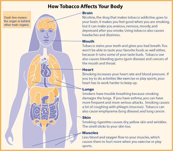 The Health Damages of Cigarette Smoking - Term Paper - 370 Words