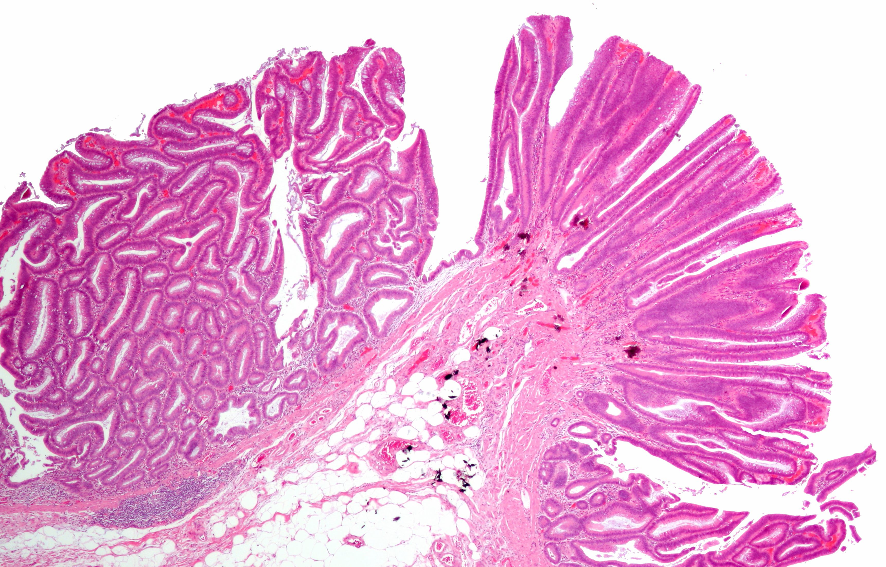 Colorectal Adenoma Wikipedia