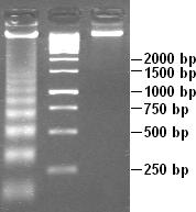 Nucleosome Wikipedia