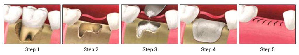 Steps of a Bone Grafting Image