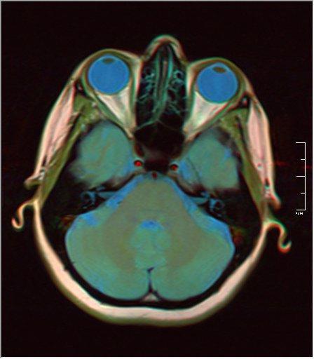 Brain MRI 0035 15 t1 pd t2 41f.jpg