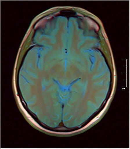 Brain MRI 0053 11.jpg