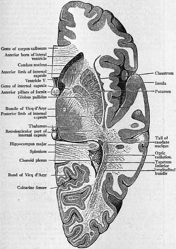 Cat Dissection Lablabeledimages additionally Vhd4th besides Abducens Vi as well Ap1model likewise 491735562751991808. on right ventricle of brain