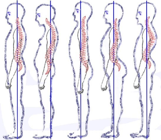 Drawing showing both good and poor posture.