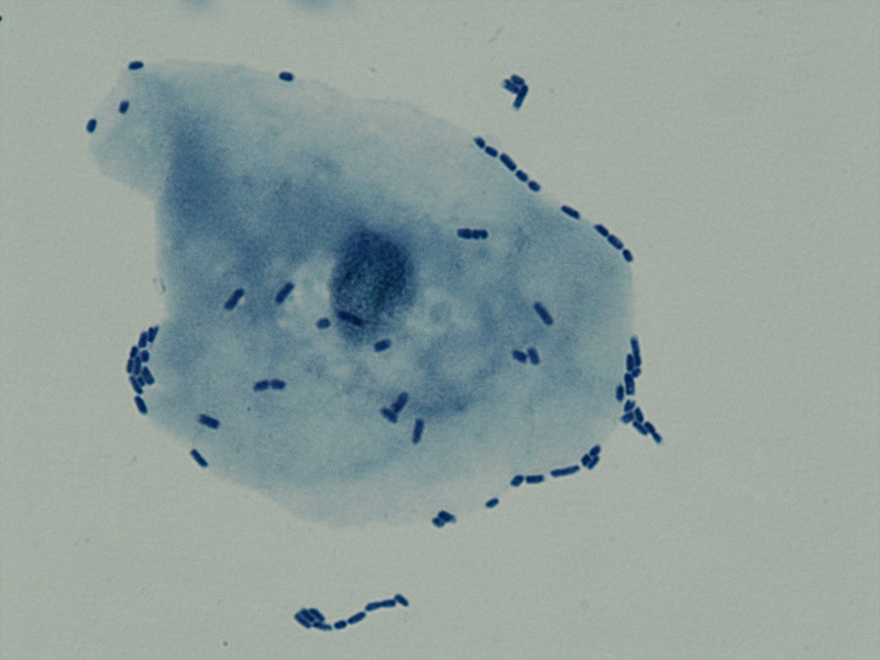 Uropathogenic Escherichia coli (UPEC) cells adhered to bladder epithelial cell (BEC). Cells stained with methylene blue and fuchsine.
