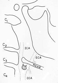 X-ray64B