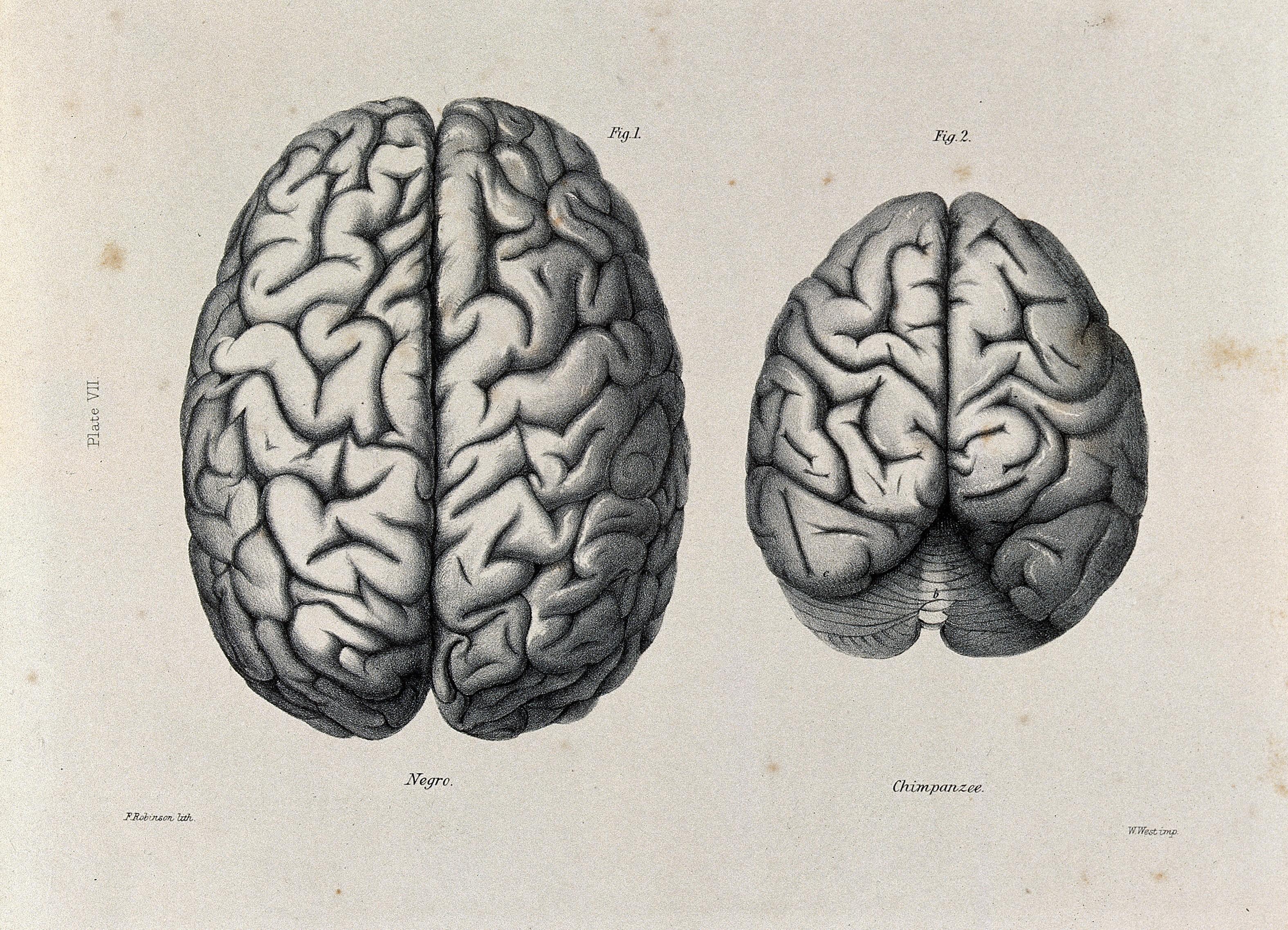 Мозг человека и мозг животного картинки