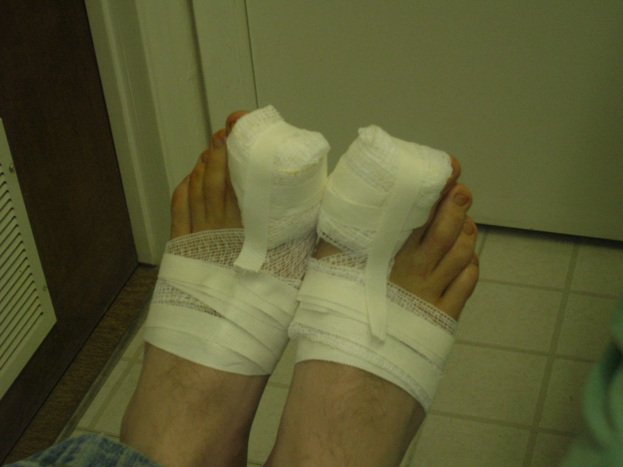 hammer toe surgery white plains