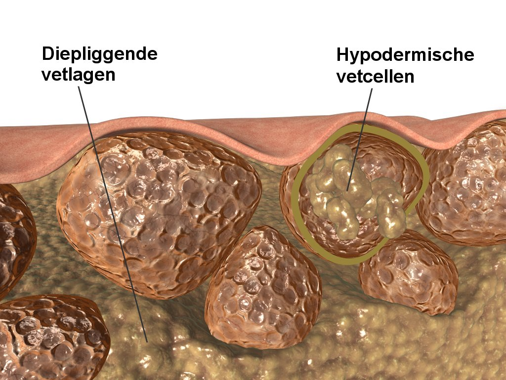 cellulitis betekenis
