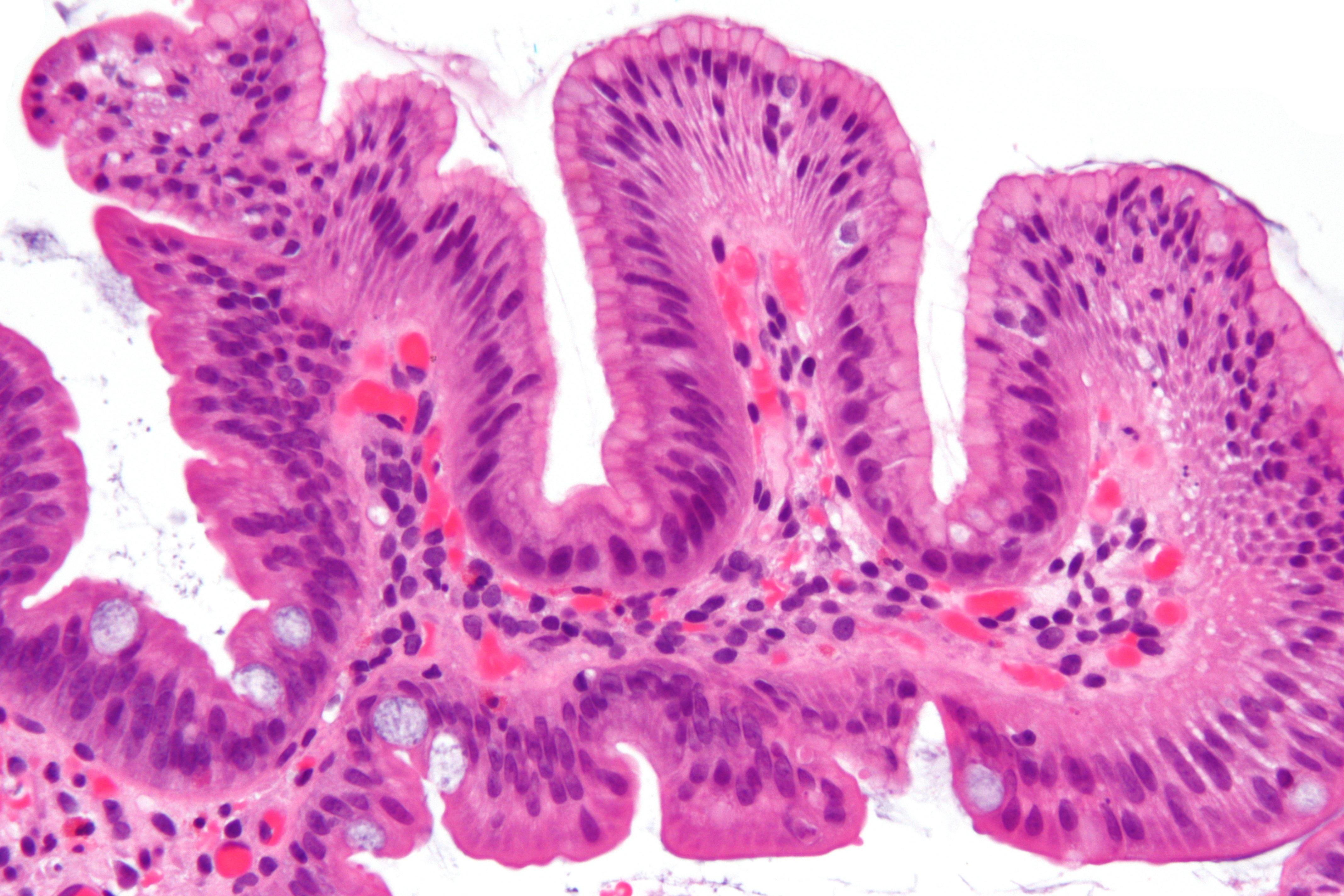 Gastric Intestinal
