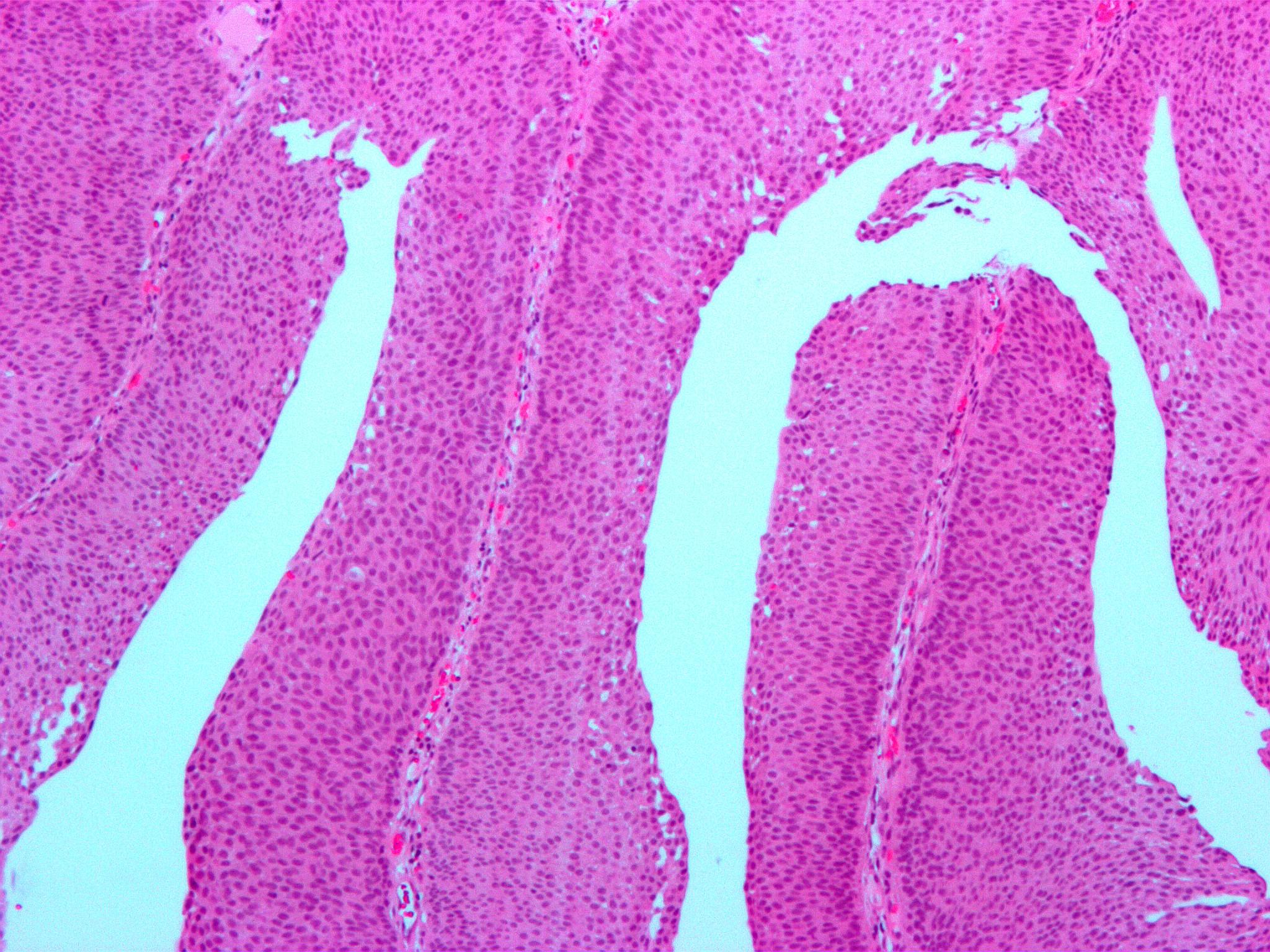 benign papillary urothelial)