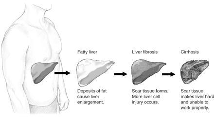 קובץ:Stage of liver damage.JPG