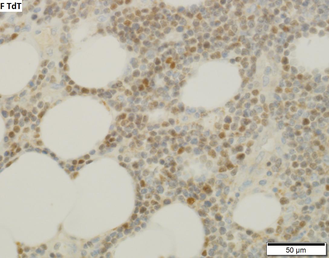 Thymoma type B1