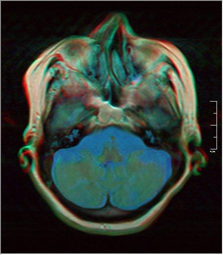 Brain MRI 0198 16.jpg